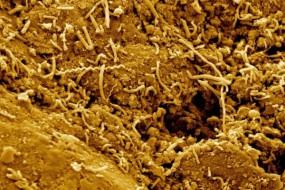 2.5千米深地下惊现微生物 深度刷新纪录