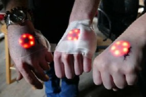 炫酷黑科技 往自己身体中植入LED灯