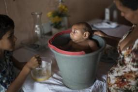 巴西确认寨卡病毒可穿透孕妇胎盘或诱发小头症