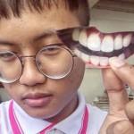 funny-chip-bag-hack-no-money-for-dentist-no-problem-1