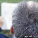 头发变白基因被发现