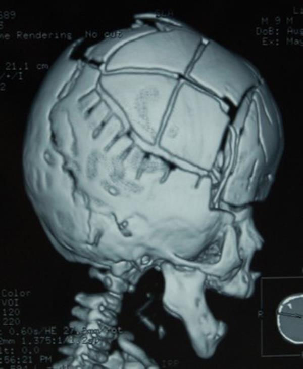 """男婴头似""""外星人"""":医生3D打印重拼颅骨-趣闻巴士"""