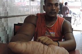 男子一只手臂异常粗壮被称恶魔之子