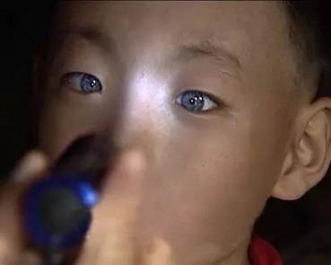 男童张一双奇特眼睛 天生能夜视