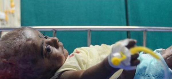 诡异:男孩出生3个月 居然无故自燃4次