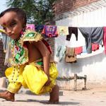 印度6岁大头男童  细长眼被奉神的化身