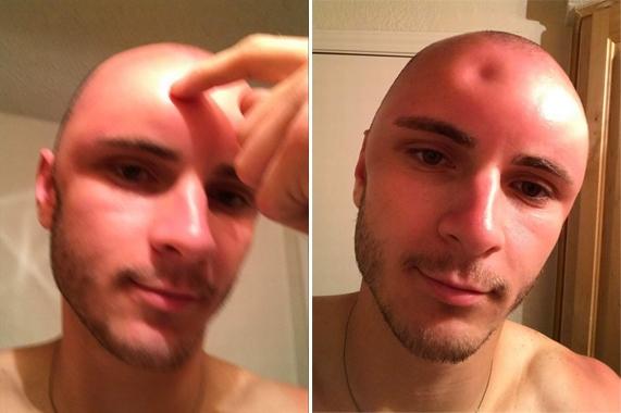 男子剃光头阳光下暴晒14小时:头部惊人变化-趣闻巴士