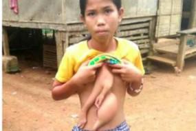 菲律宾少女腹部多长出一双手
