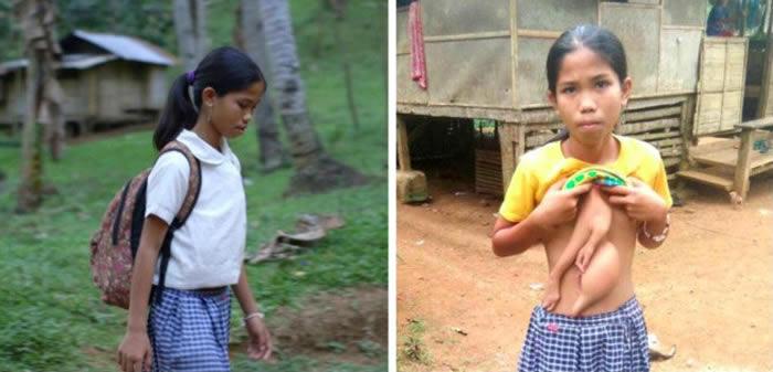菲律宾14岁少女腹部长出神秘双手-趣闻巴士