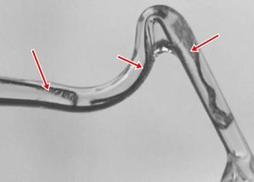 用纳米水凝胶微形机器人在人体内精准送药